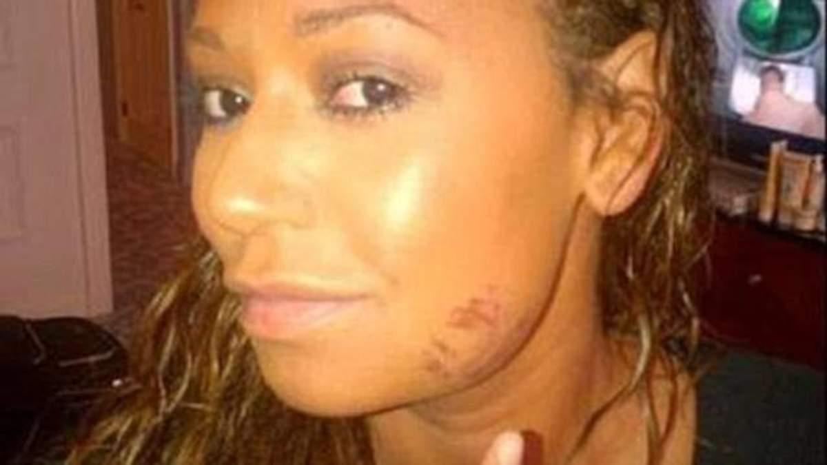 Скандальный развод: экс-участница Spice Girls рассказала об издевательствах мужа