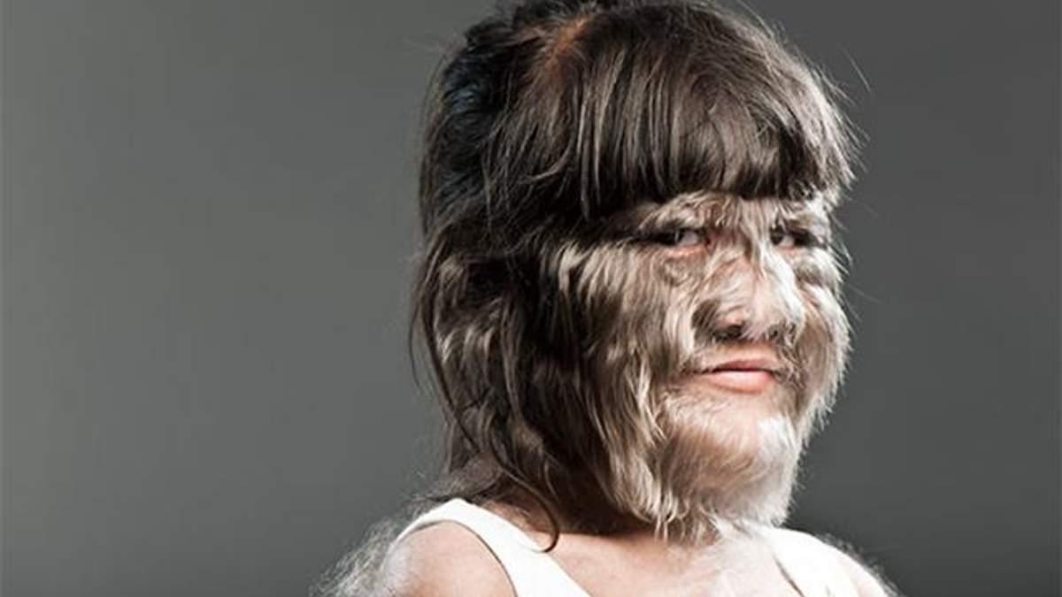 Найволохатіша дівчина світу вийшла заміж: вражаючі фото