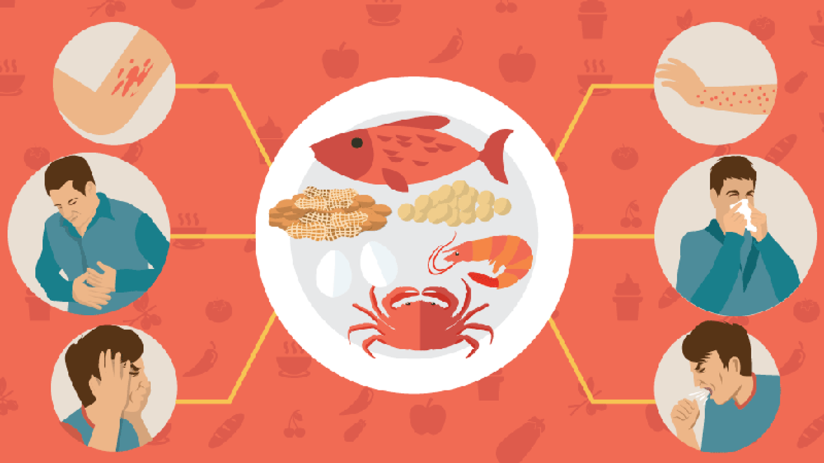 Які симптоми харчової алергії не можна ігнорувати