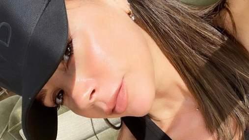 Косметологія рятує: яка процедура допомагає Вікторії Бекхем зберігати молодість шкіри